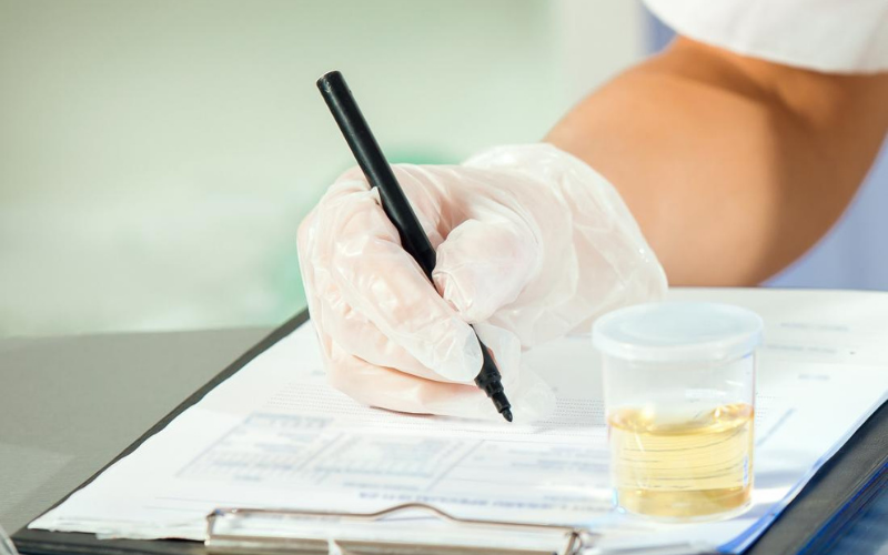 jobs that don't require drug test